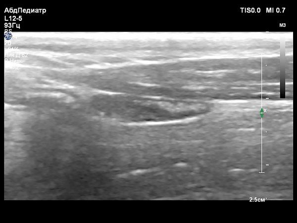 УЗИ правой доли щитовидной железы у собаки с гипотиреозом